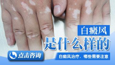 白癜风常见诊断方法