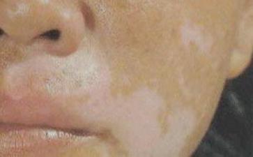脸上白癜风多久能治好呢